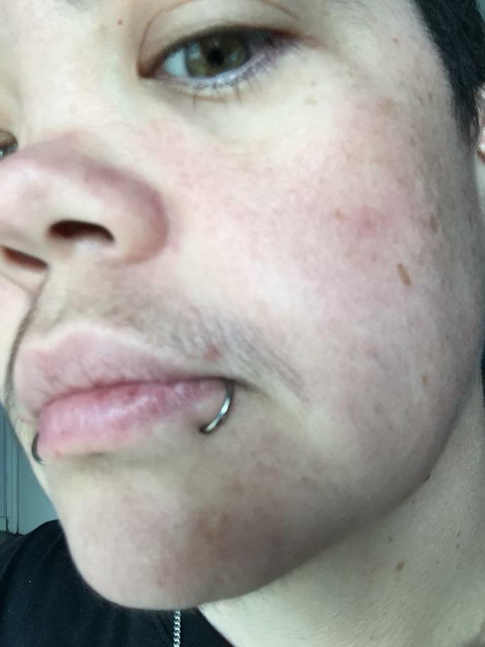 Face hair week 10 on T