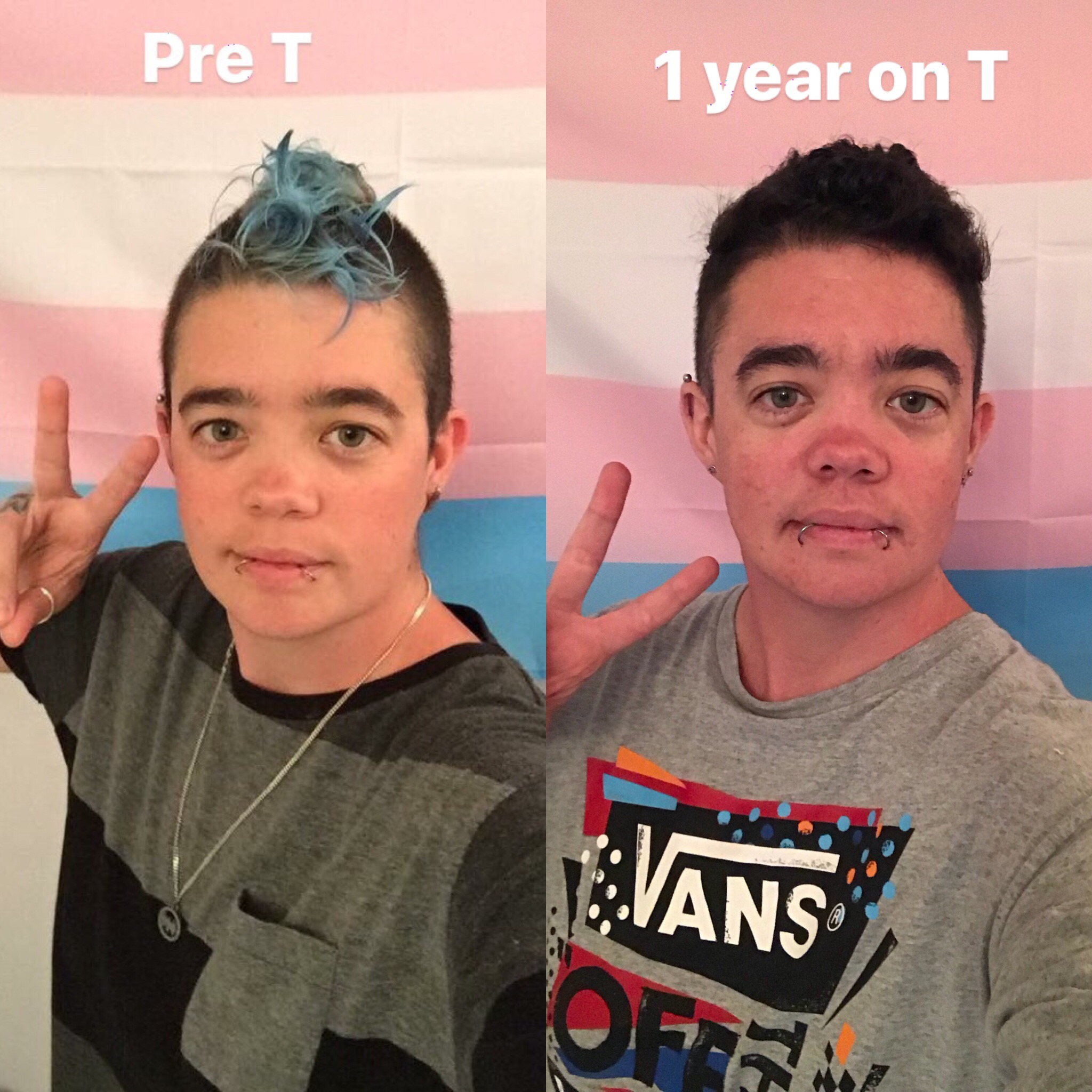 1yr on T comparrison